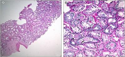 Cipro induced pancreatitis